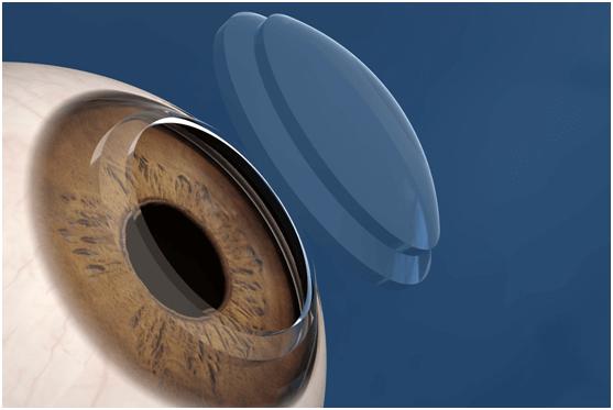 cornea5